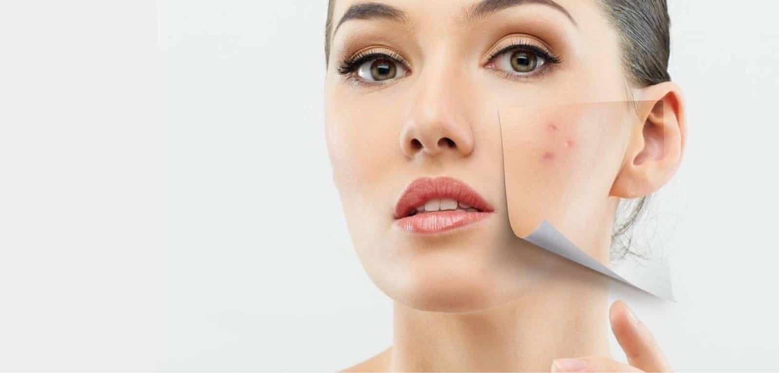 Remedies and tips for acne from The Best salon in Lahore